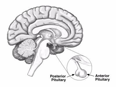 Proton therapy case study